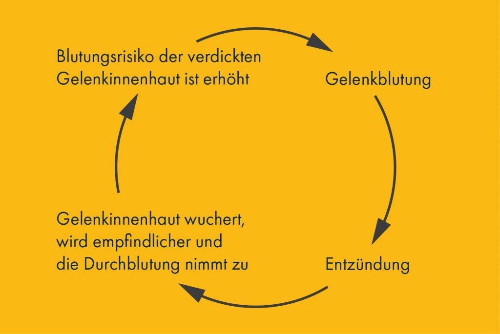 Zyklus einer Gelenkblutung