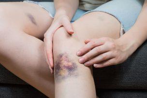 Gerinnungsstörungen bei Frauen